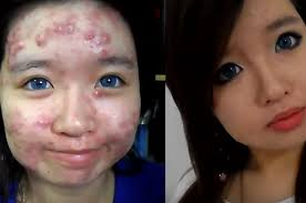 makeup tutorial for acne face