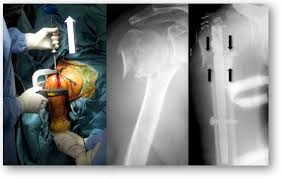 humeral surgical neck fractures