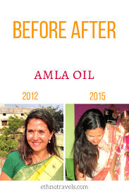 amla oil for hair growth and thickness