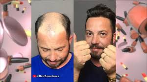 Social Media Beauty Tips to Avoid with Celebrity Hair Stylist Jonathan Antin  | The Doctors TV Show
