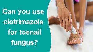 clotrimazole for toenail fungus