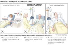 bone marrow and stem cell transplants