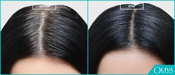 pcos hair loss best treatments regrow