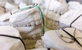 HD wallpaper: white dentures, Teeth, Models, Gypsum, Dentist, Dental,  dentistry | Wallpaper Flare