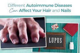 autoimmune disease can damage skin