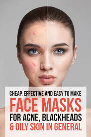 face masks for blackheads acne oily skin