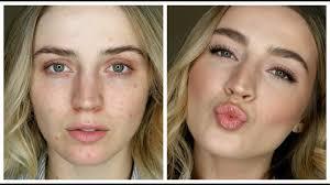makeup to cover acne redness you