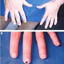 leuconychia features fingernails of
