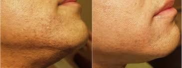 hair removal philadelphia for