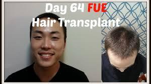 fue hair transplant surgery 1700 grafts