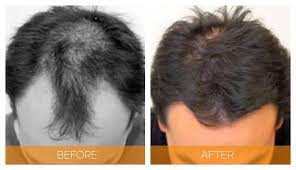 hair transplant in cookeville hair