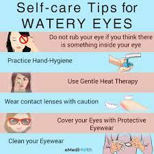 how to stop watery eyes treatment and