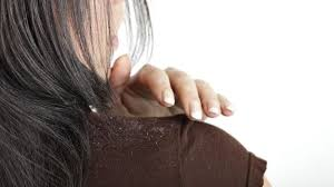 home remes to get rid of dandruff