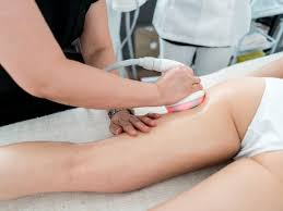 laser fat removal everything you need