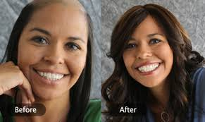 how to help hair loss after surgery