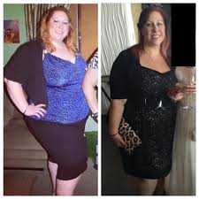 gastric sleeve success rate how much