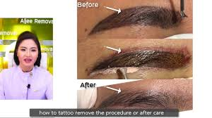 permanent makeup removal non laser by