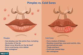 is it a cold sore or pimple