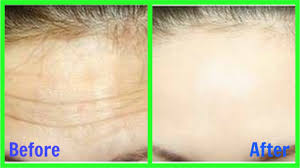 remove wrinkles from face forehead
