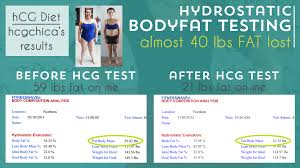 mic shots to your hcg injections