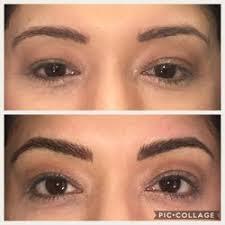 permanent makeup near scc electrolysis