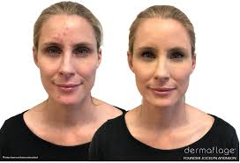scar makeup to cover scars dermaflage