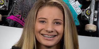 Alana Smith Wiki & Bio - Skateboarder