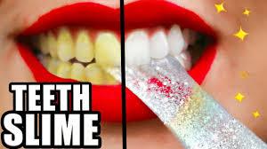 diy teeth whitening slime whiter teeth