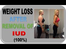 weight loss after iud removal a must