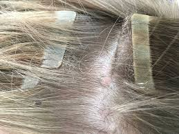 tape extensions damage uncovered