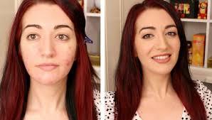 oily acne e skin