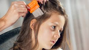headlice everything you don t want