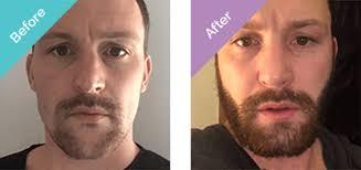 beard transplant turkey low cost
