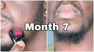 does derma rolling help with beard