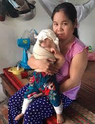 Thực hư bác sĩ bị tố khiến bé gái sơ sinh 4,1kg 'đứt dây chằng ...