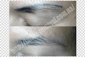 tattoo removal png pngflow