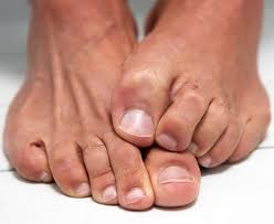non treatments for toenail fungus