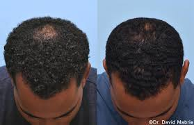 prp for hair loss in san francisco dr