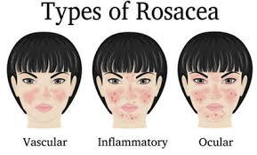 skin redness makeup tips for redness