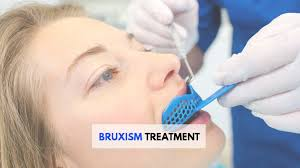 Image result for bruxism treatment images