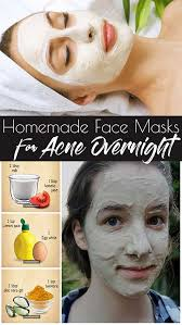homemade face l mask for acne