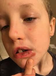 severely chapped skin or impetigo