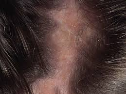 tingling scalp causes symptoms and