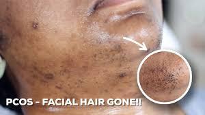 diy sugar wax hair removal