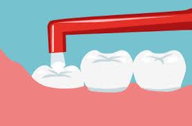 歯ブラシを上回るワンタフトブラシ!毎日2分の歯垢除去対策