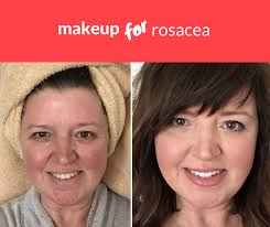 how i cover rosacea without looking