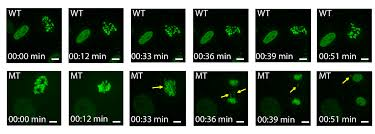 Live Cell Imaging of Chromosome Segregation During Mitosis. - Abstract -  Europe PMC