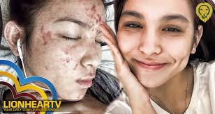 kyline alcantara on suffering from acne