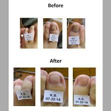 ugly nails after removing polish