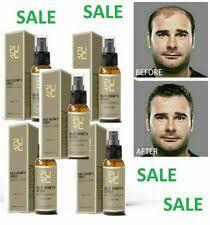 hair loss spray ebay